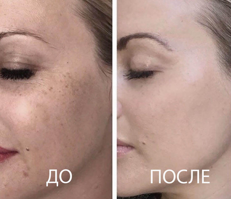 Лечение пигментных пятен на лице до и после