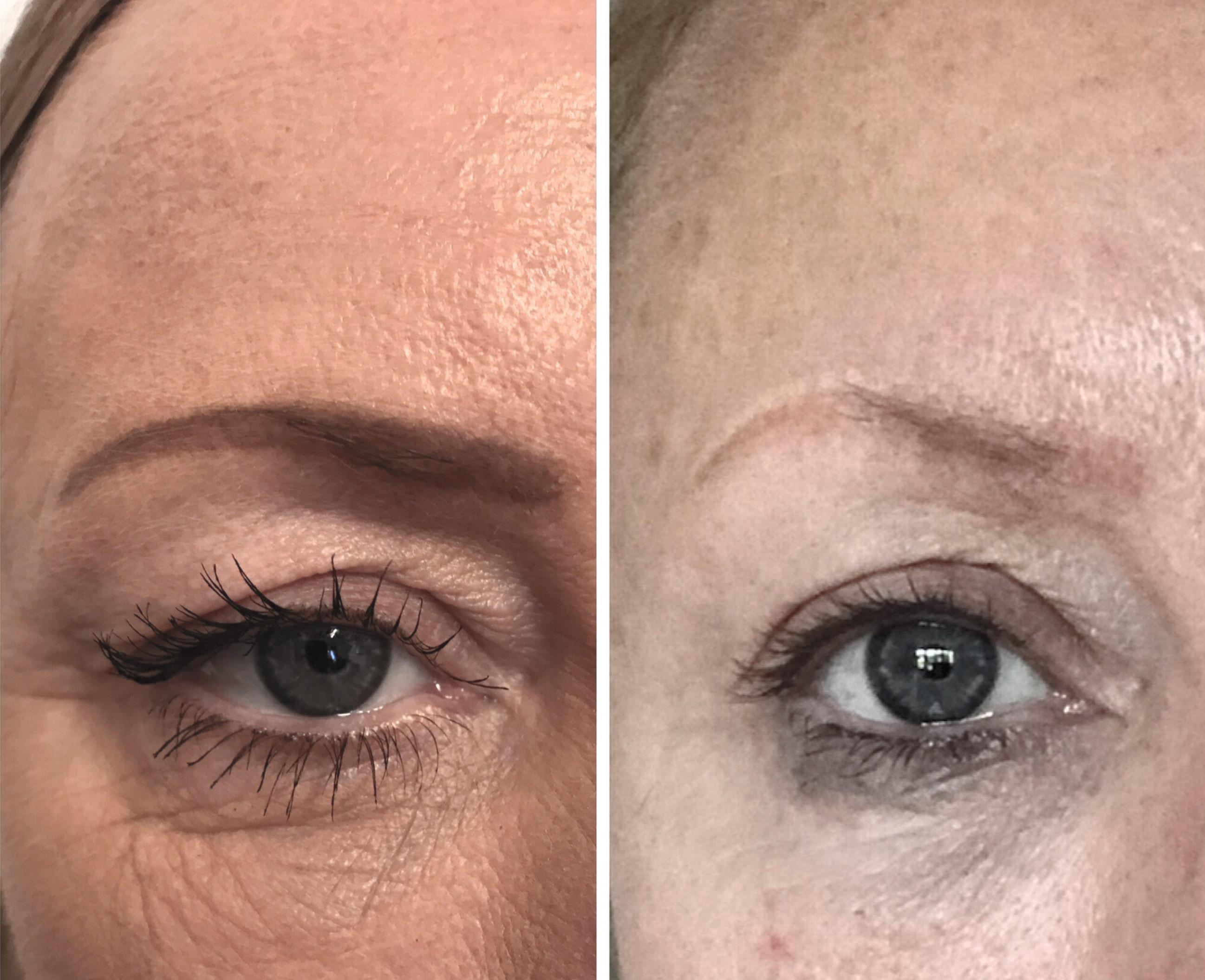 До и после процедуры плазмолифтинга