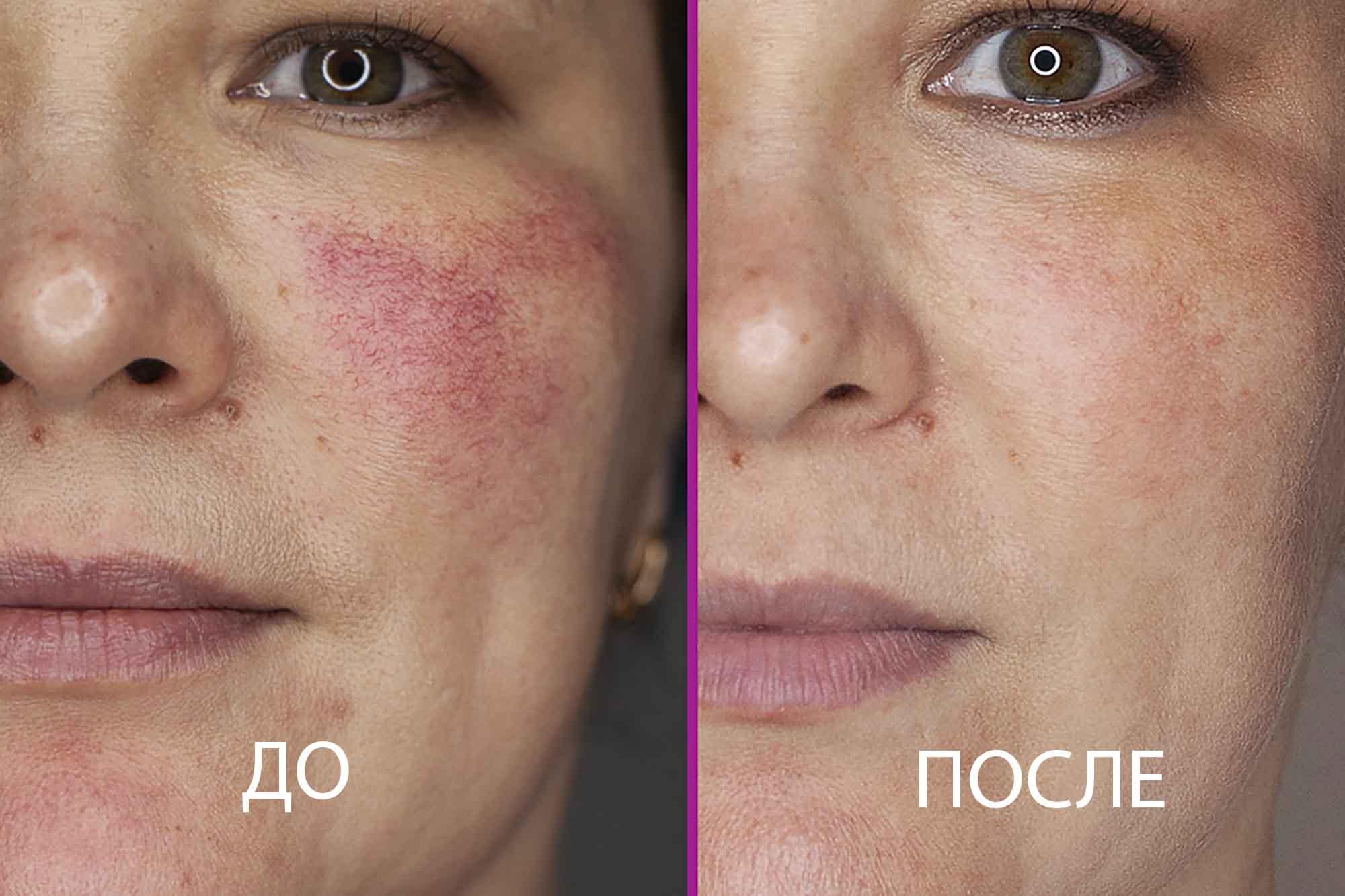 Сосуды на щеках до и после