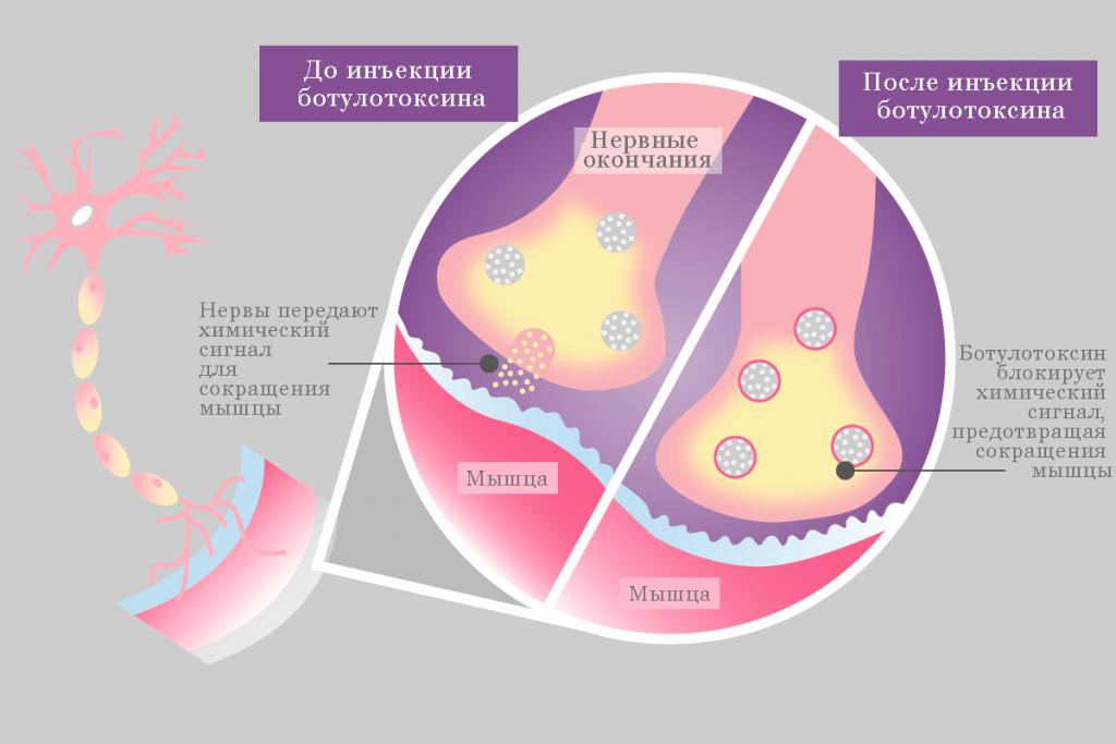 Удаление морщин ботоксом в спб