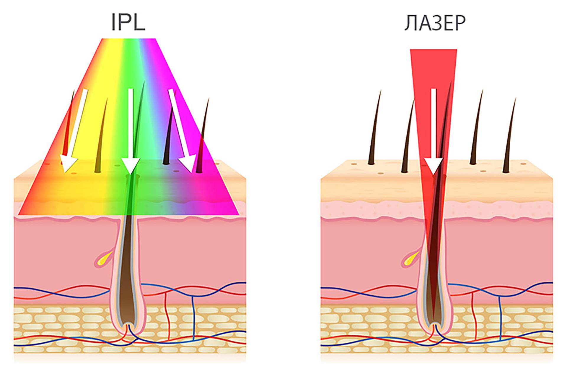 Лазерная эпиляция эффективнее фотоэпиляции