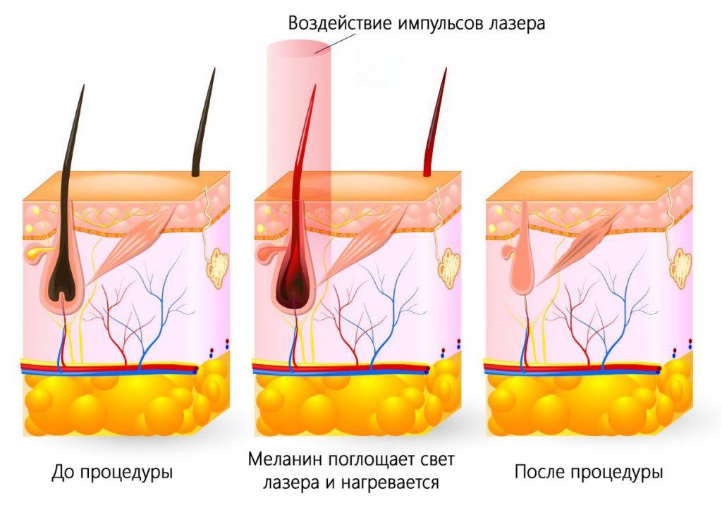 Лазерная эпиляция бикини у мужчин
