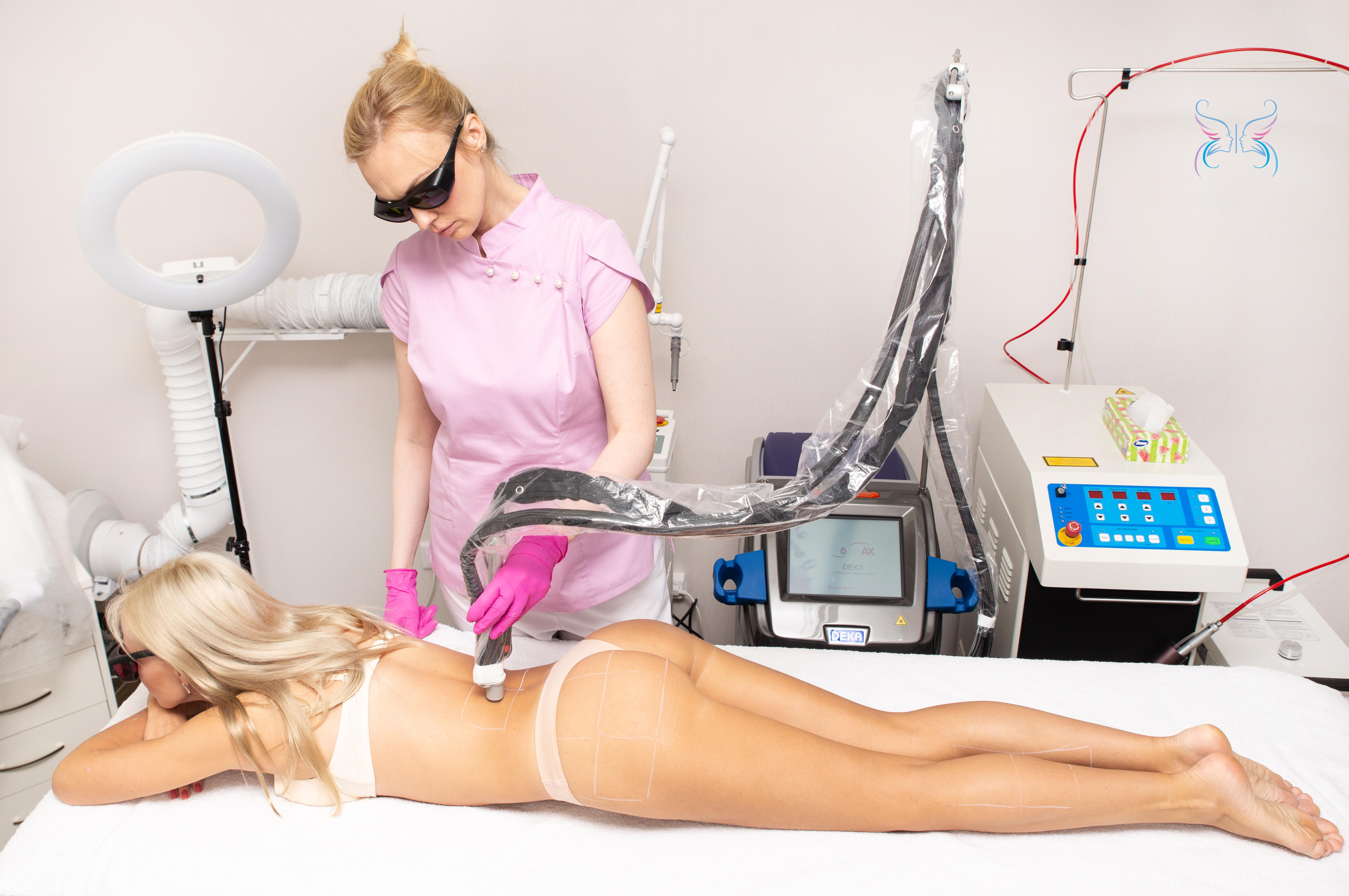 Лазерная эпиляция спины по технологии Moveo