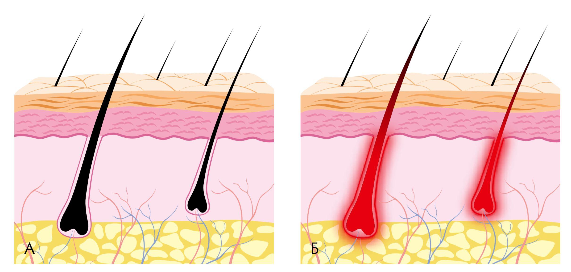 Воздействие излучения на волос