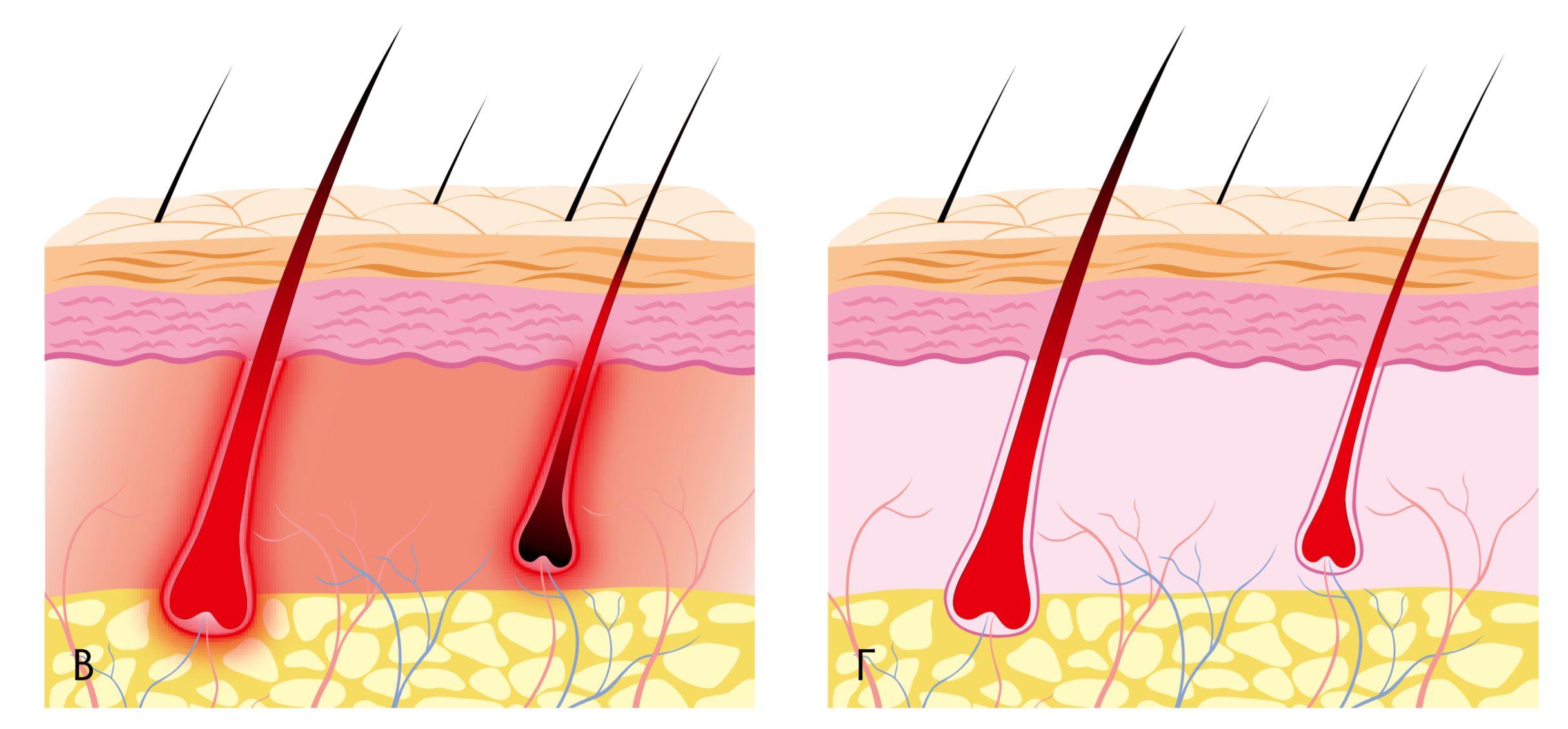 Воздействие лазерного излучения на волос