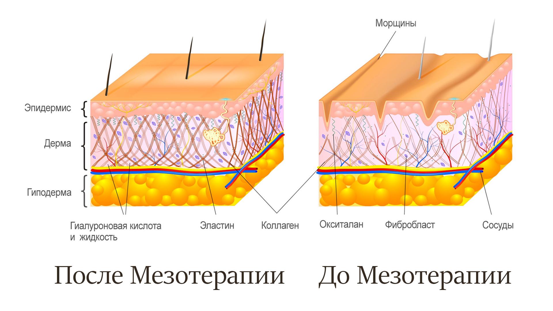 Мезотерапия