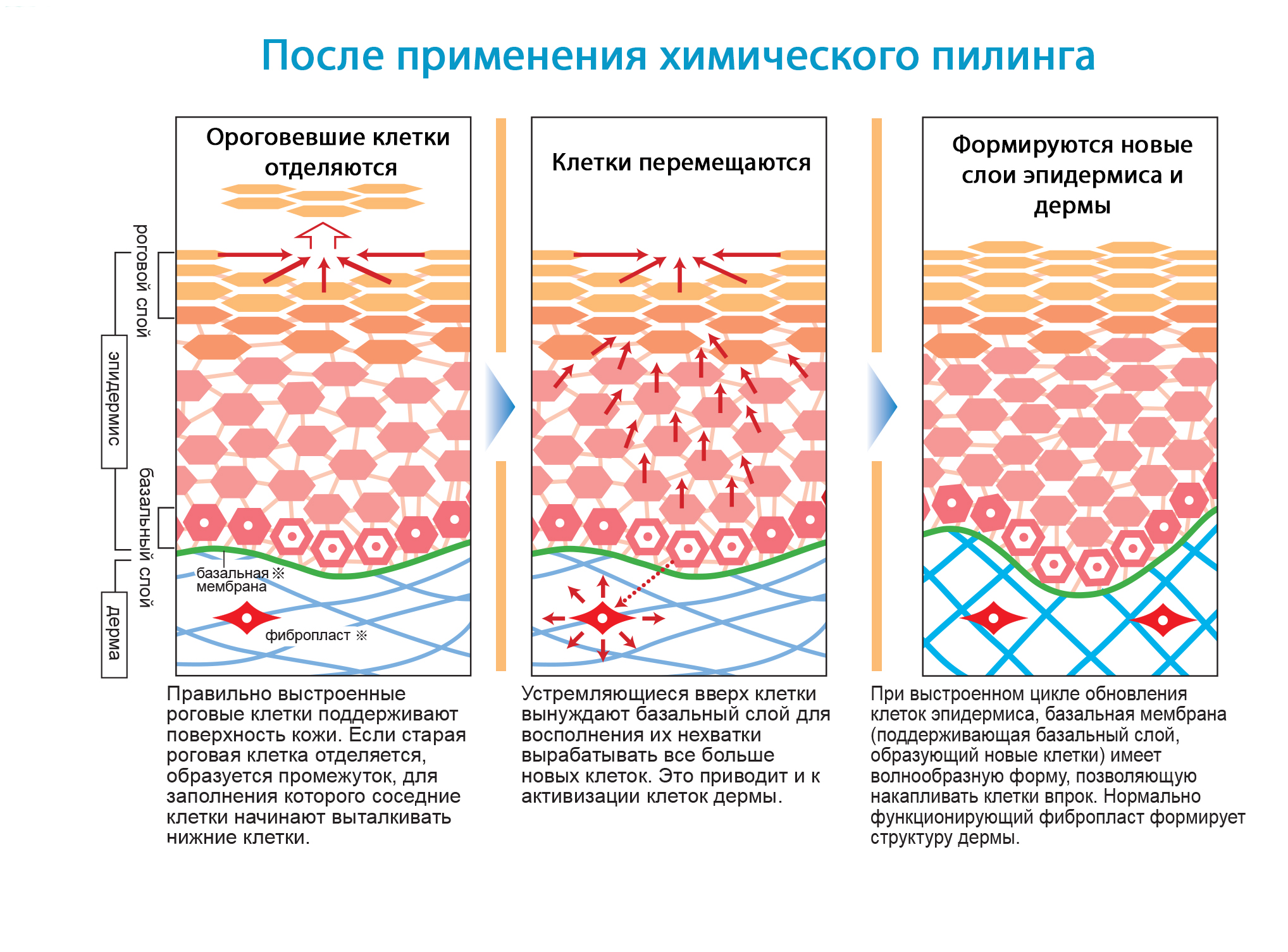 Принцип действия химического пилинга