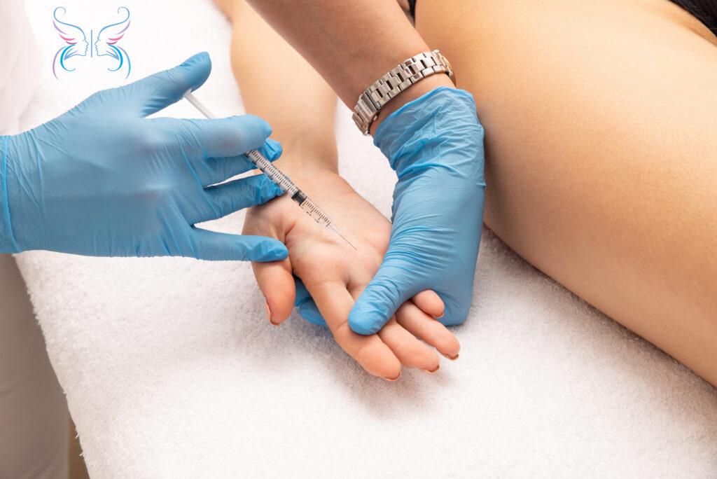 лечение гипергидроза ладоней