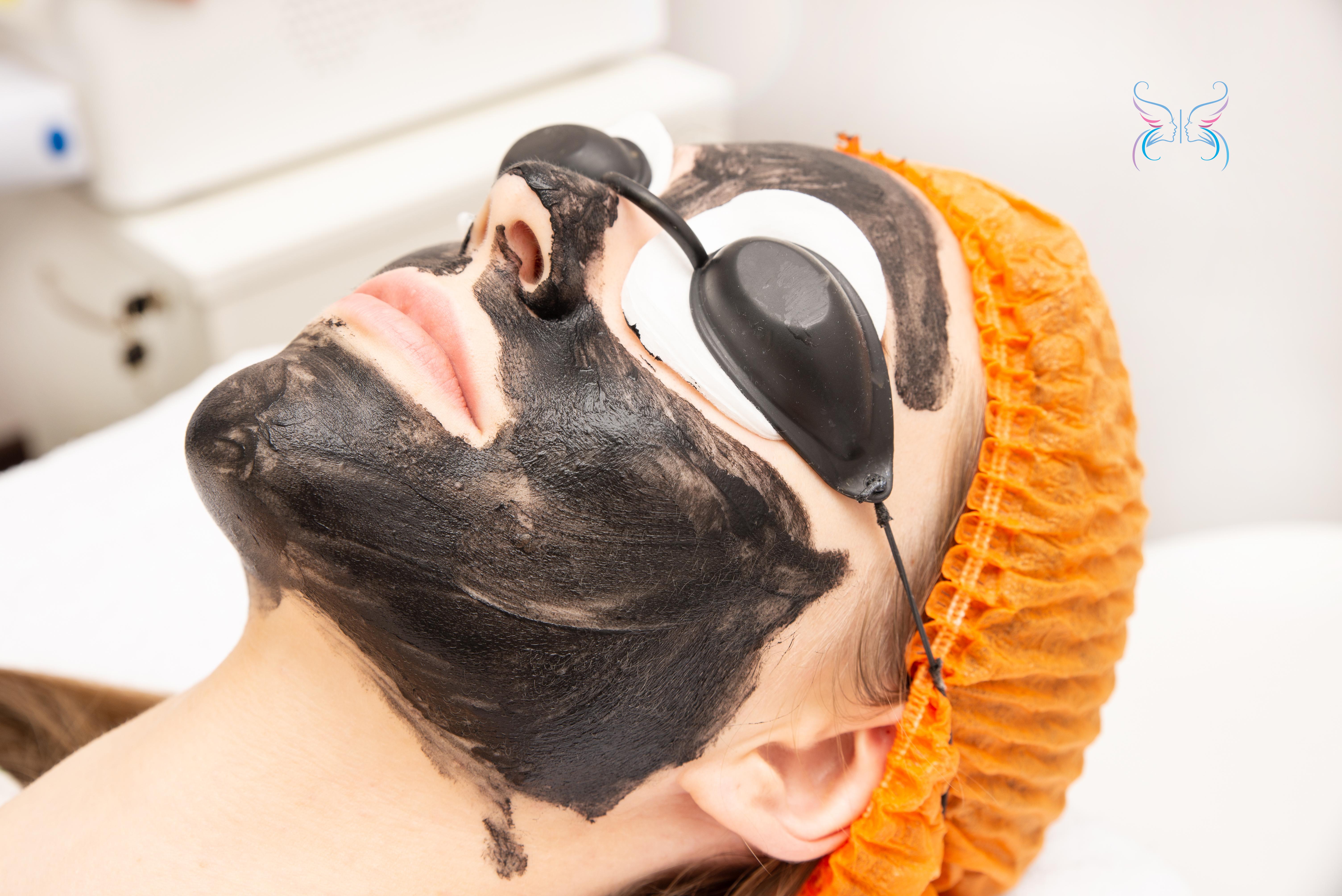 Карбоновый гель нанесен на лицо