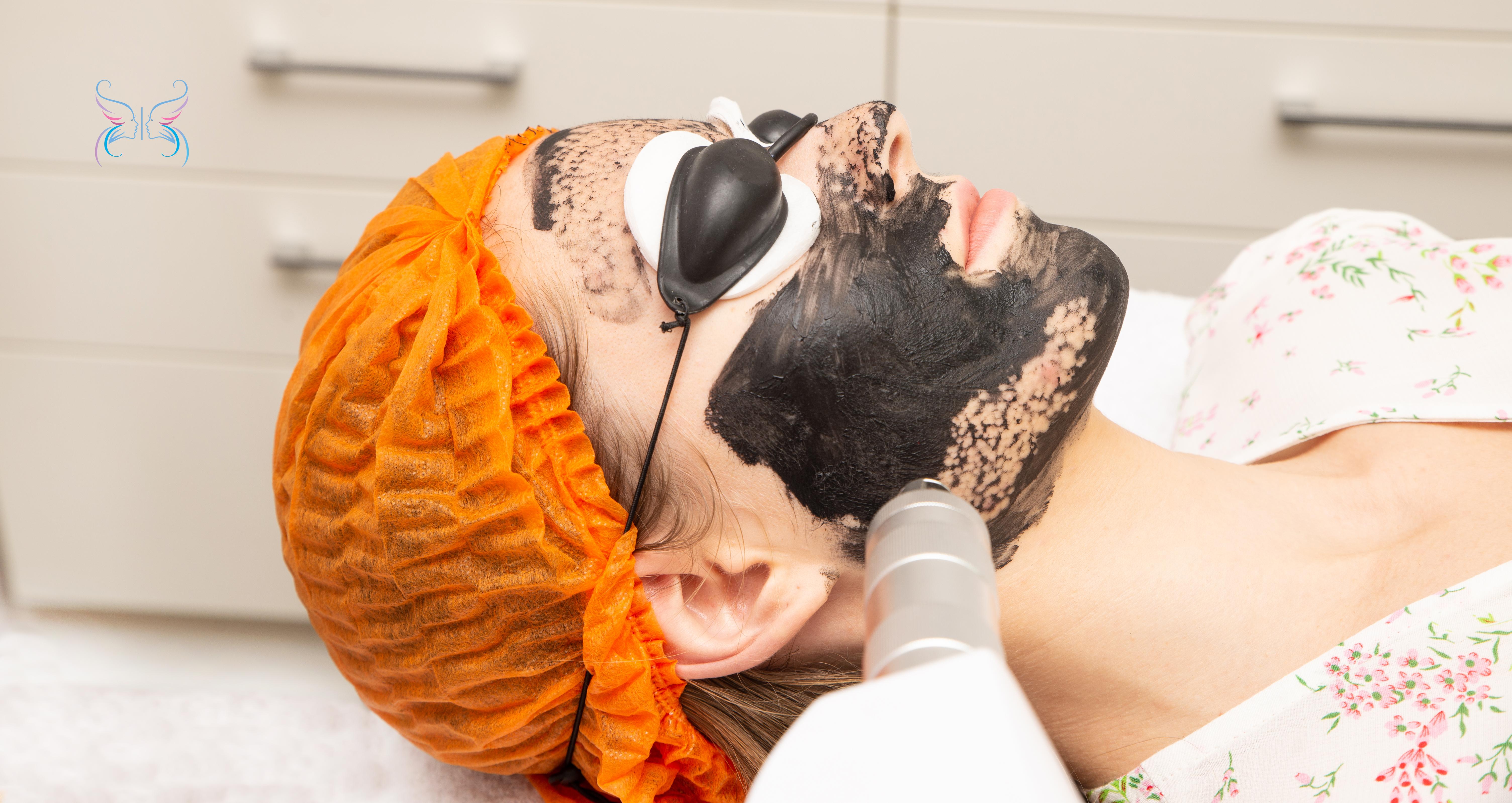 Проведение процедуры карбоновый пилинг лица