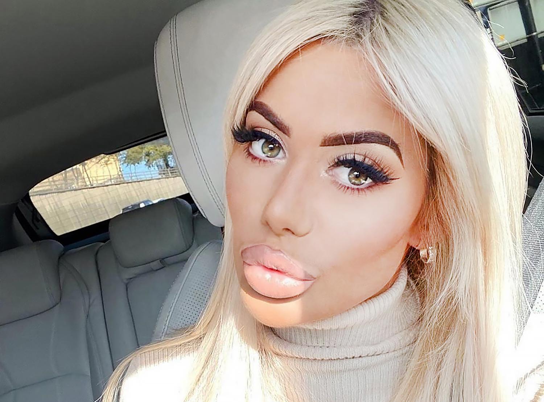 Увеличенные губы