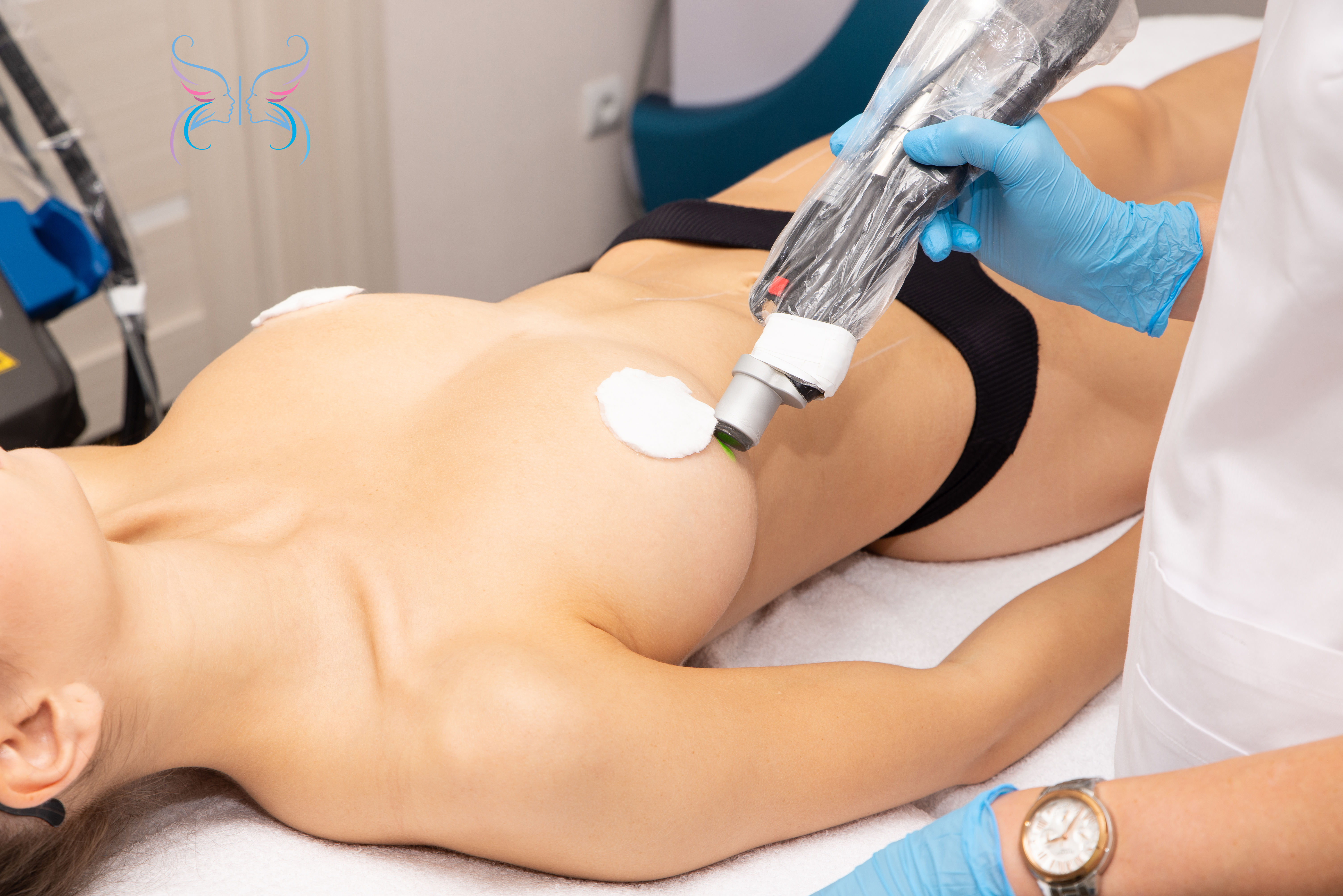 Лазерная эпиляция груди