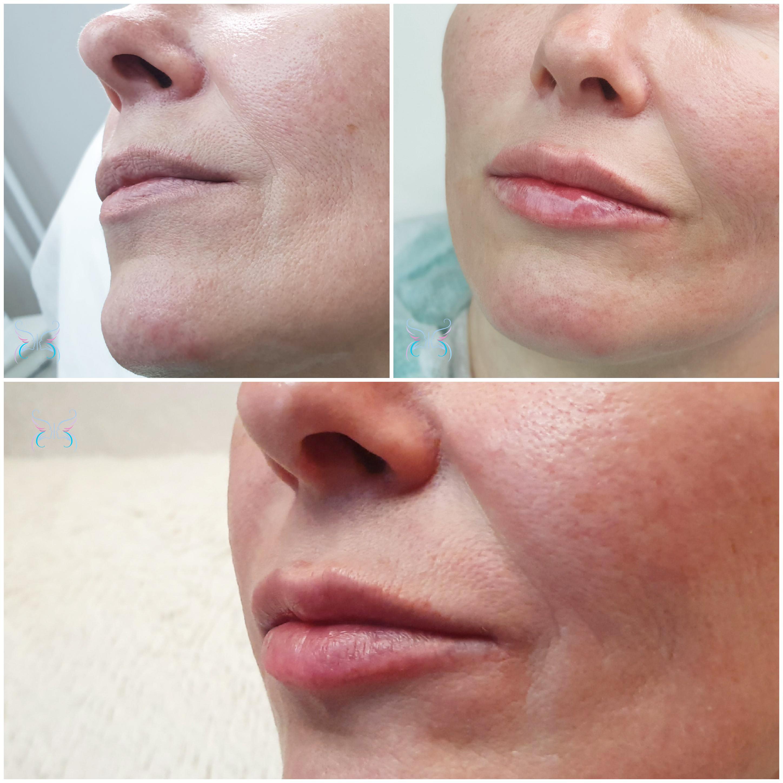 После процедуры увеличения губ