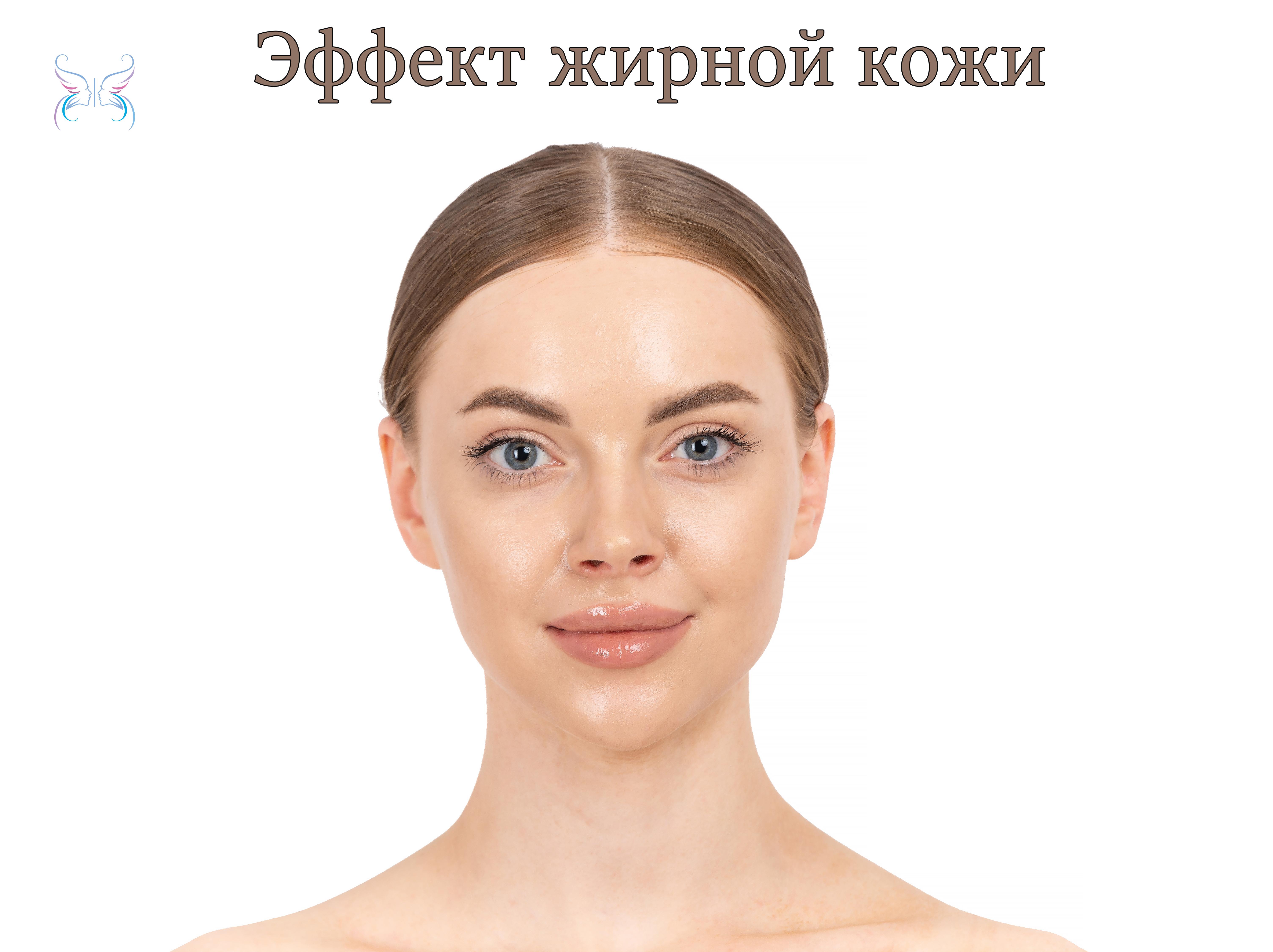 Эффект жирной кожи